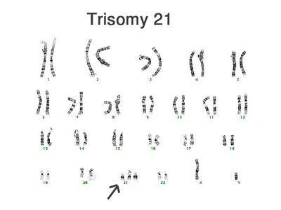 kariotipNa Trisomiyu