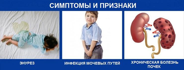 признаки у детей